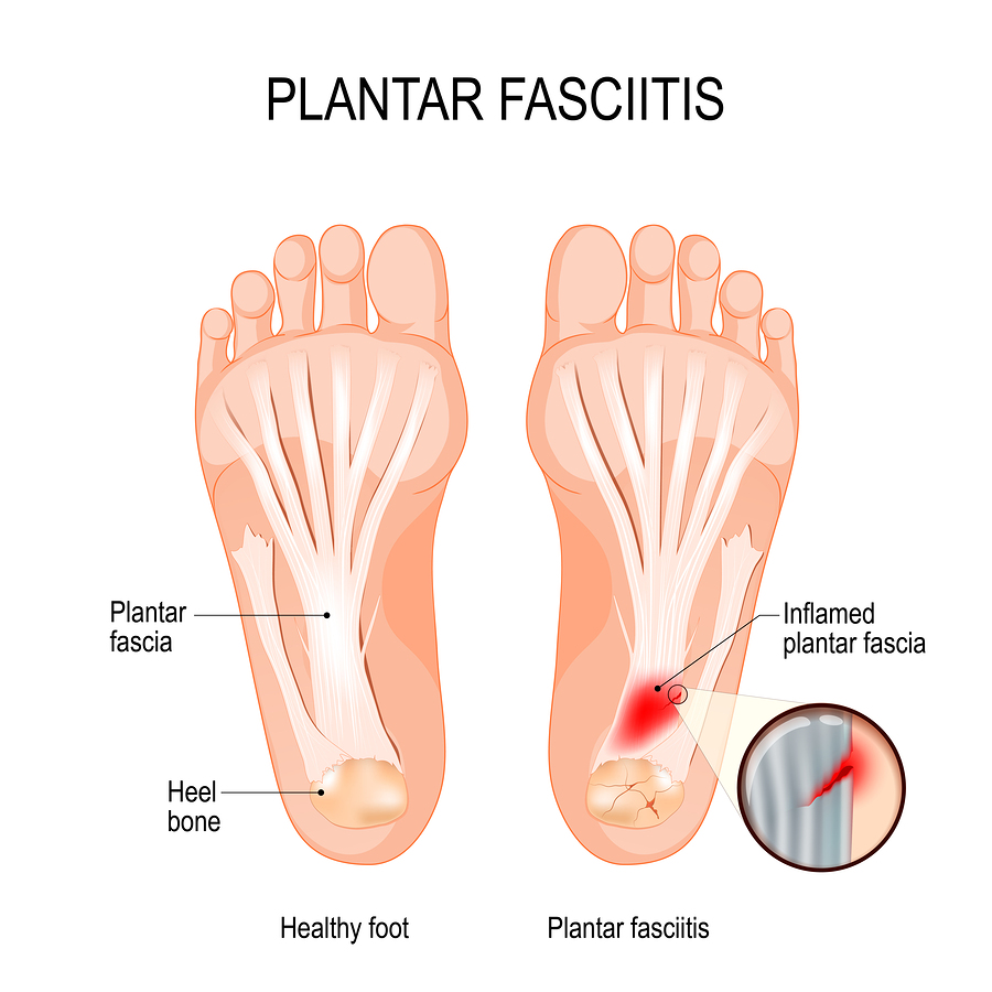 Foot Pain or Heel Pain caused by Plantar Fasciitis can be treated without surgery by a physical therapist in Lafayette, LA